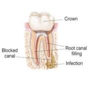 Endodontic Retreatment